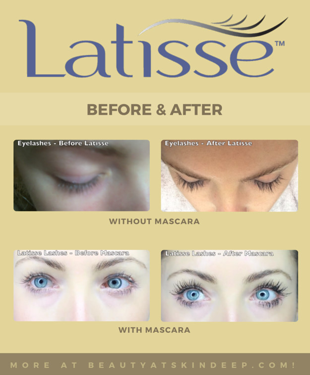 The Latisse Experience: Before & After