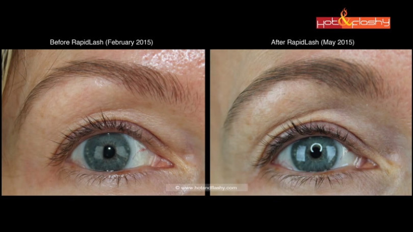 Rapidlash Vs Latisse Which One Wins Eyelash Growth